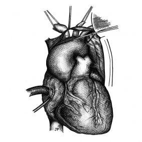 armaro cardiochirurgo