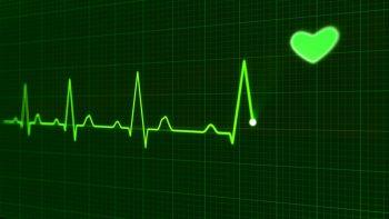 ischemia cardiaca - cardiochirurgo
